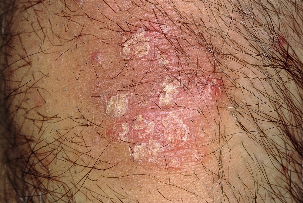 No Difference in Herpes Zoster Risk With Biologic- vs Nonbiologic-Treated Psoriasis