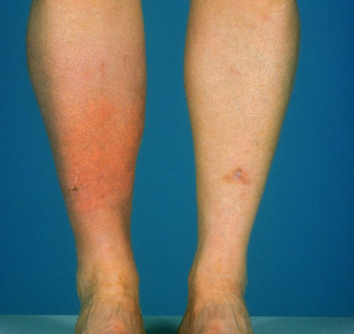 Weight-Based Dosing of Clindamycin and TMP/SMX Improves Cellulitis Outcomes