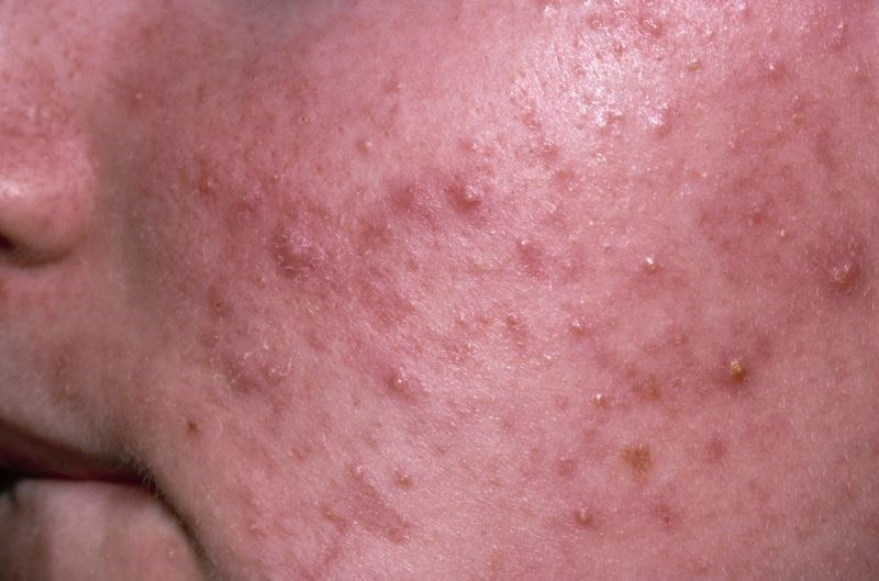 Strategies for Preventing Antibiotic Resistance in Acne