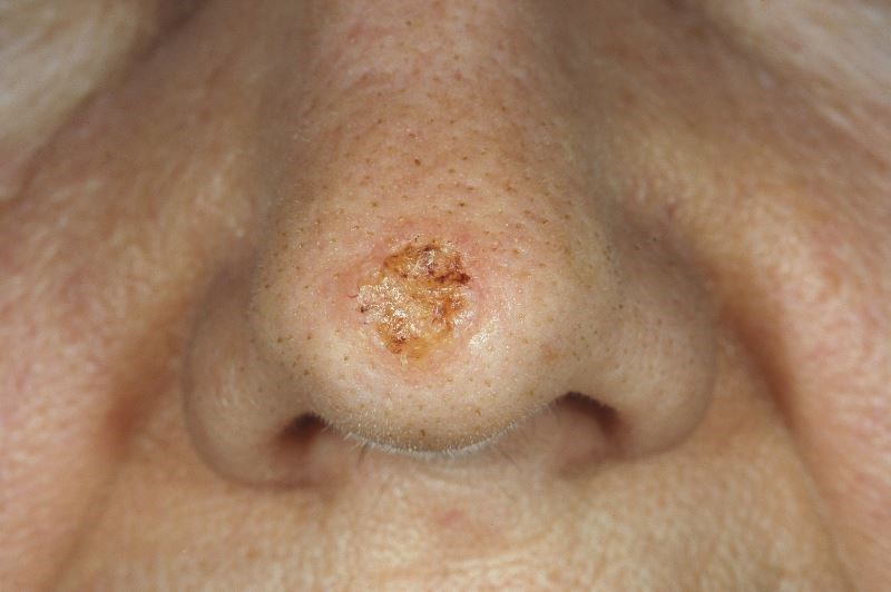 Risk for Basal, Squamous Cell Carcinoma Linked to Hydrochlorothiazide