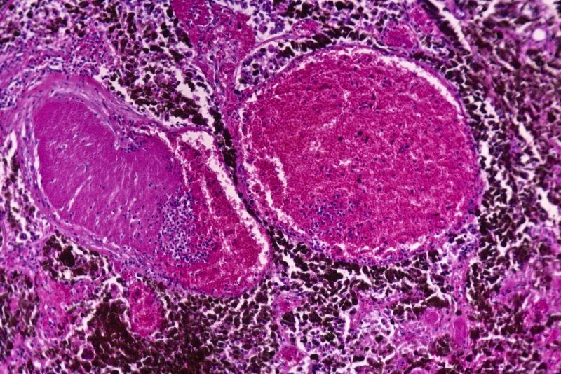 Negative Margins, Lymph Node Yields Predict Survival in Squamous Cell Carcinoma