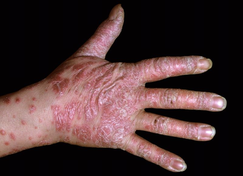 FDA Approves Topical Treatment for Plaque Psoriasis