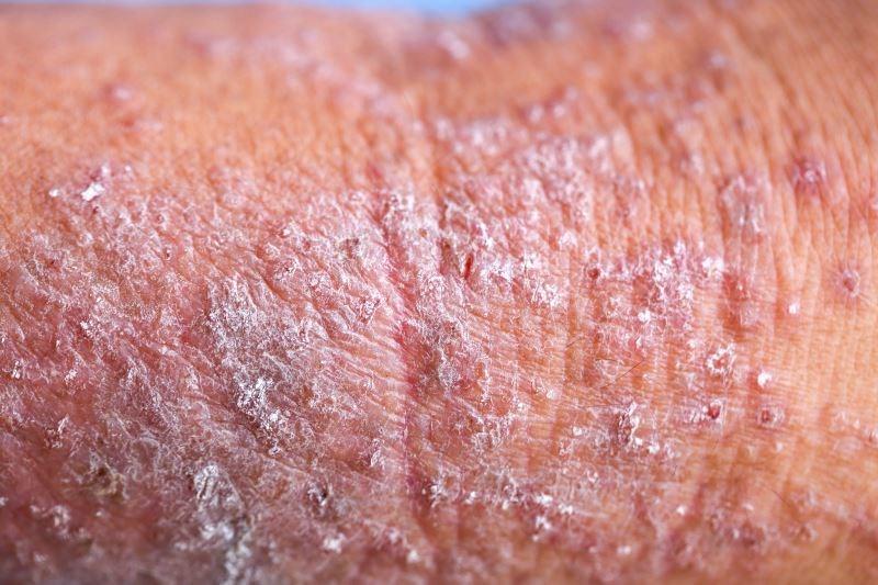 Atopic Dermatitis Severity Associated With IgG Responses to S. Aureus Antigens