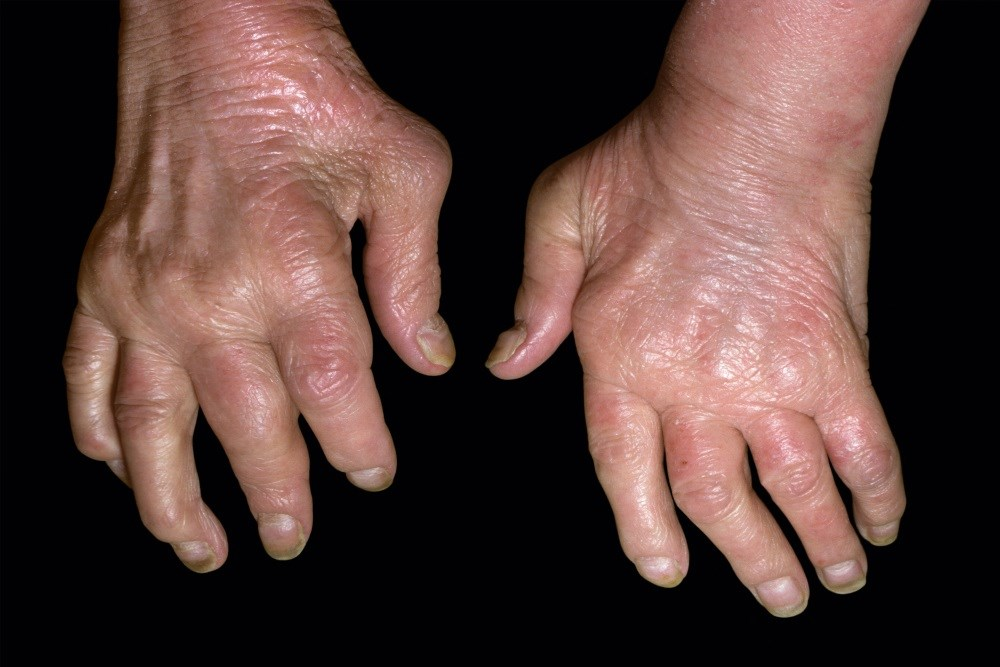 Psoriasis, Psoriatic Arthritis Associated With Increased Risk for Liver Disease