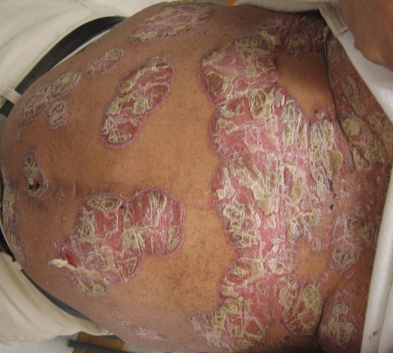 Watch What Is Scalp Psoriasis video