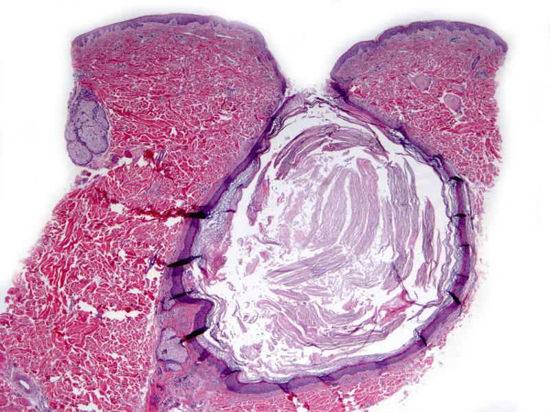 Epidermal Inclusion Cyst Cytology Dog Epidermal (infu...
