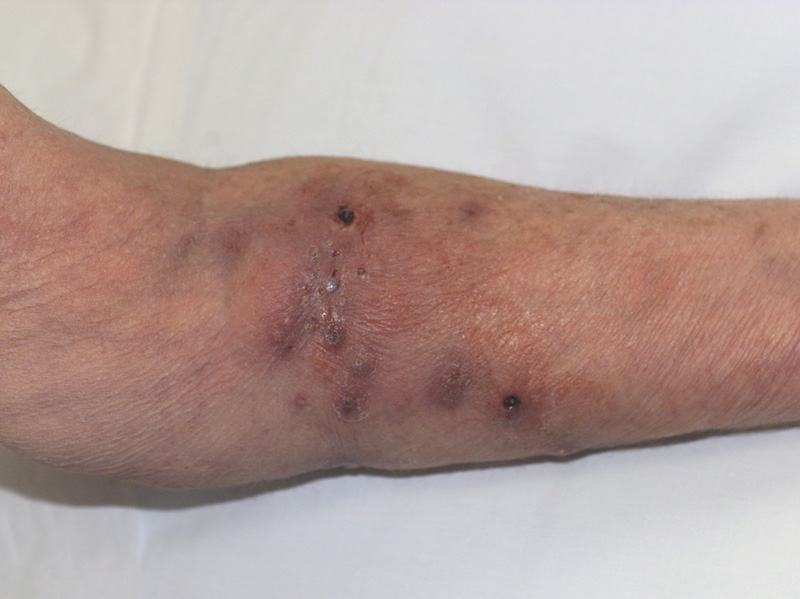 Atypical mycobacterial infections (Nontuberculous ...