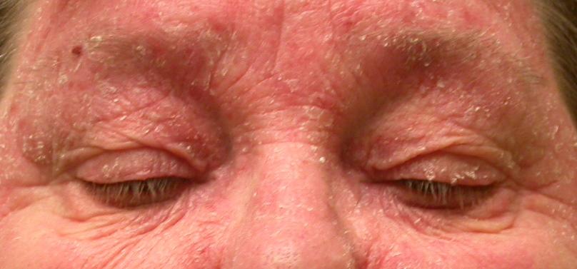 Cause eyelid rash