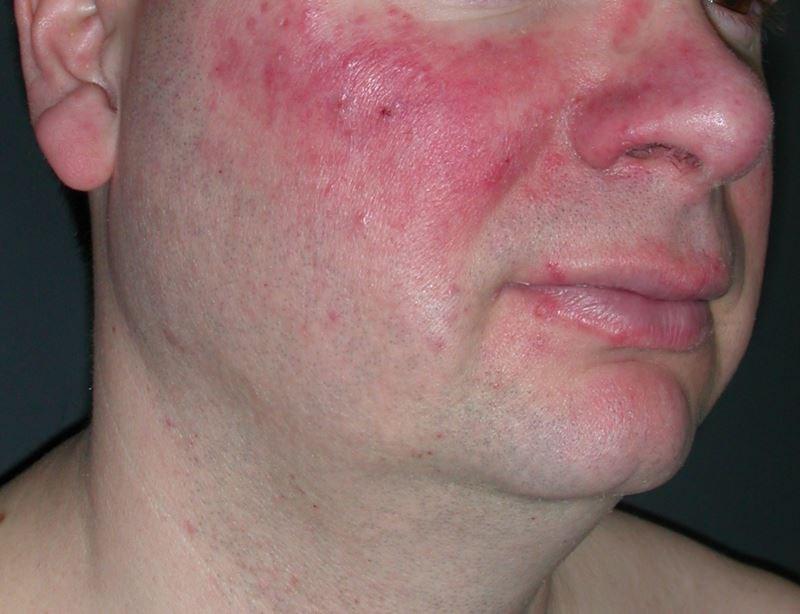 Oxymetazoline Effective for Long-Term Treatment of Rosacea-Associated Facial Erythema