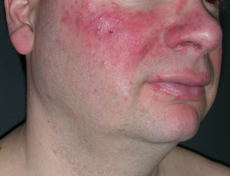 CV Risk Stratification Utilizing Validated Assessment Scales in Rosacea