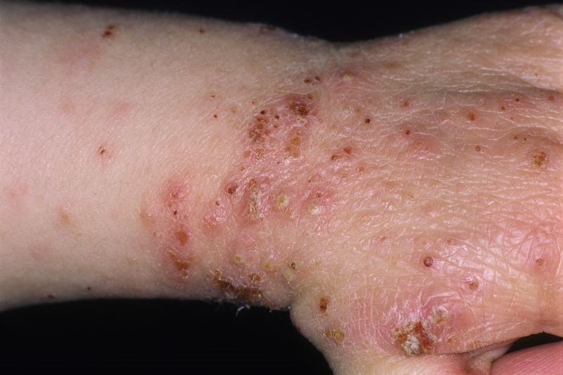 Adolescents With Atopic Dermatitis Often Deviate From Prescribed Medication Regimens