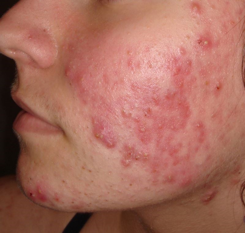 Patients With Acne Have High Serum Homocysteine Levels