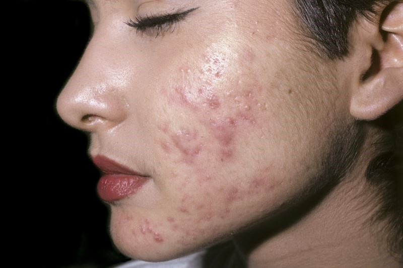 Sarecycline 1.5 mg/kg once daily significantly improved acne severity and significantly reduced inflammatory lesion count.