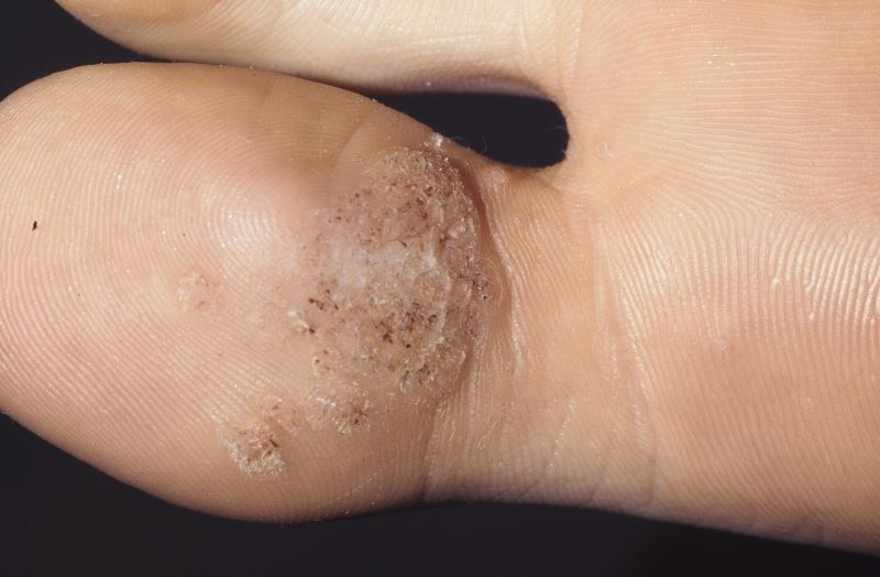 Common Warts Effectively Treated With Candida Antigen