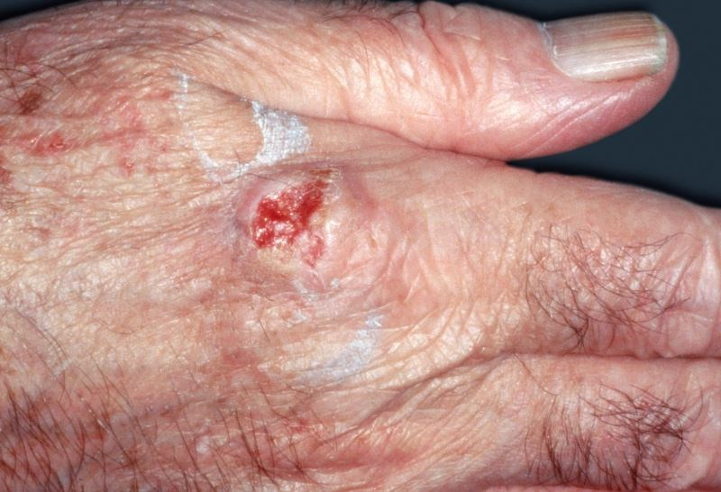 Patients with atopic dermatitis may have a greater risk of developing squamous cell carcinoma.
