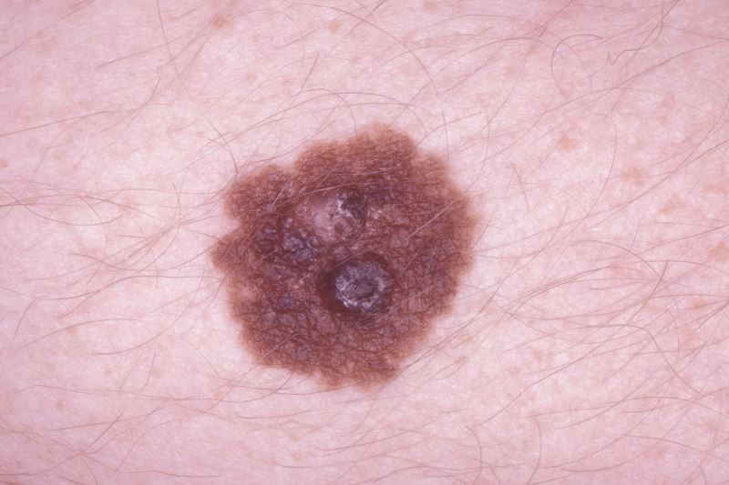 Melanoma Staging System Updated