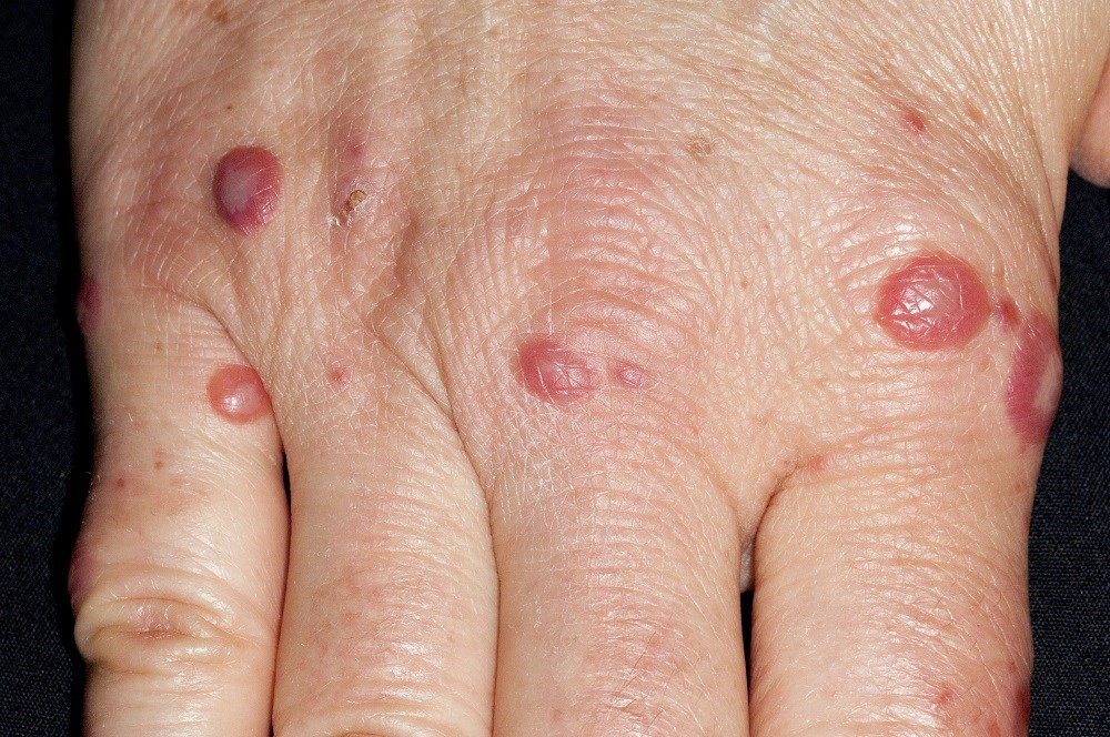 Adults With Hand-Foot-and-Mouth Disease: Review and Case Study