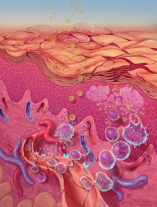 Nemolizumab Effective for Moderate, Severe Atopic Dermatitis Inadequately Controlled With Topical Therapy