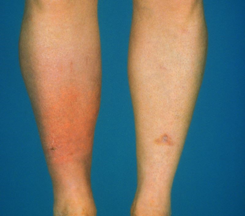 Prophylactic Antibiotics May Be Best Bet for Preventing Cellulitis Recurrence