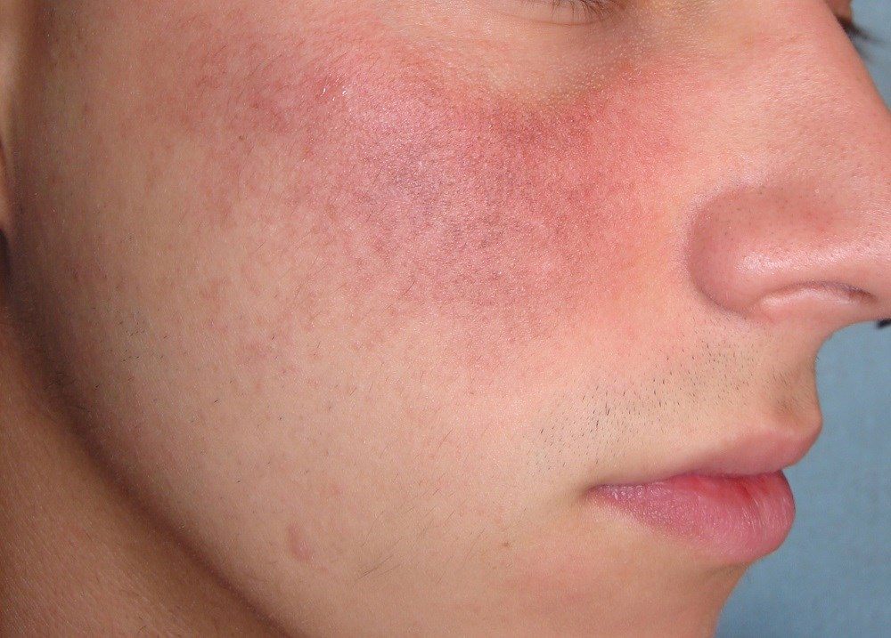 Diluted botulinum has been shown to alleviate symptoms of rosacea.