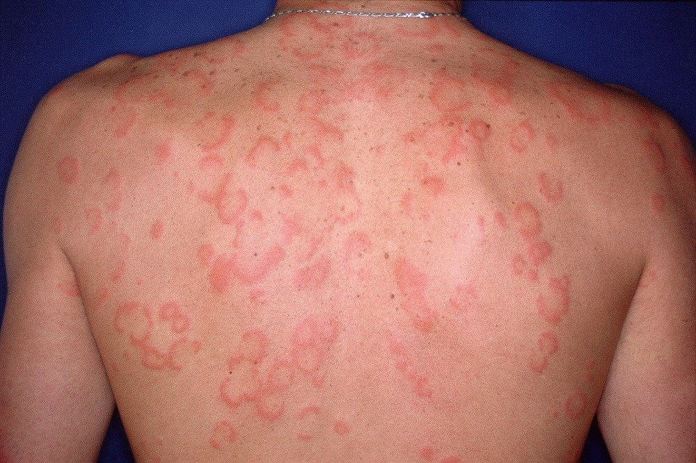 Refractory Urticaria Benefits From Omalizumab