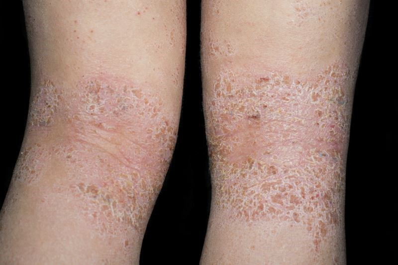 Crisaborole Ointment Safe for Treating Atopic Dermatitis