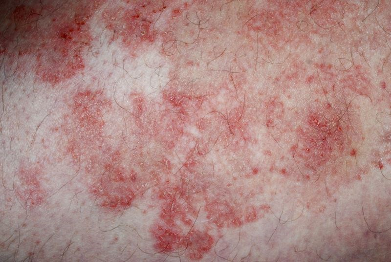 Severe Atopic Eczema Tied to Higher CVD Risk