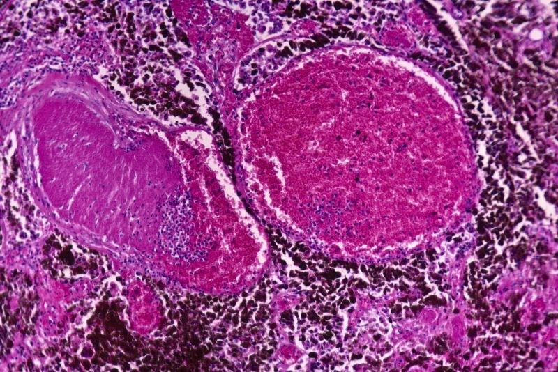 FDA Approves Nivolumab as Adjuvant Treatment for Metastatic Melanoma