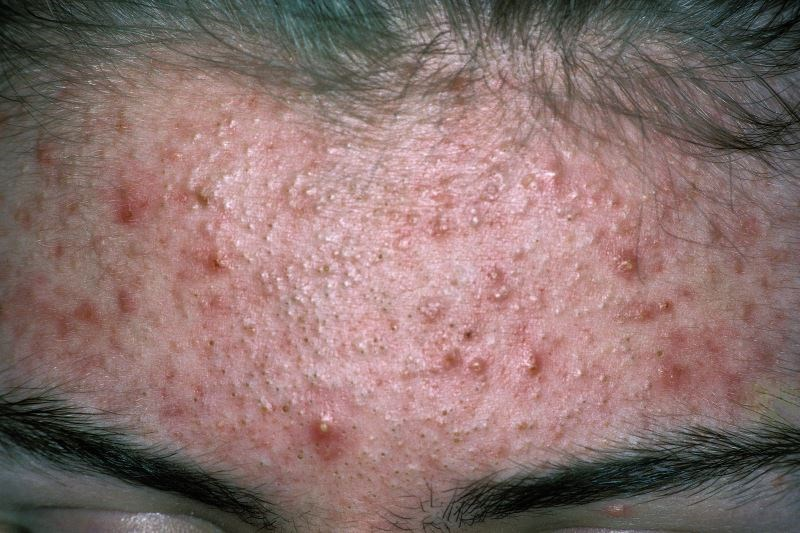 Long-Term Macrolide Treatment for Acne Increases P. Acnes Resistance