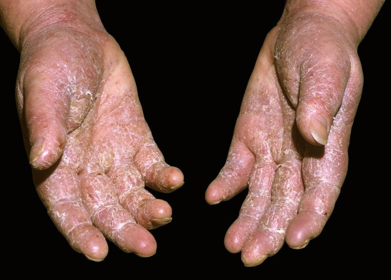 Clinical and Therapeutic Differences Between Linear and Classical Psoriasis