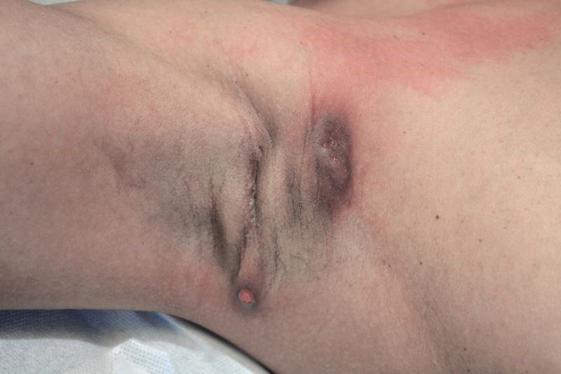 Strong Link Observed Between Hidradenitis Suppurativa, Crohn Disease