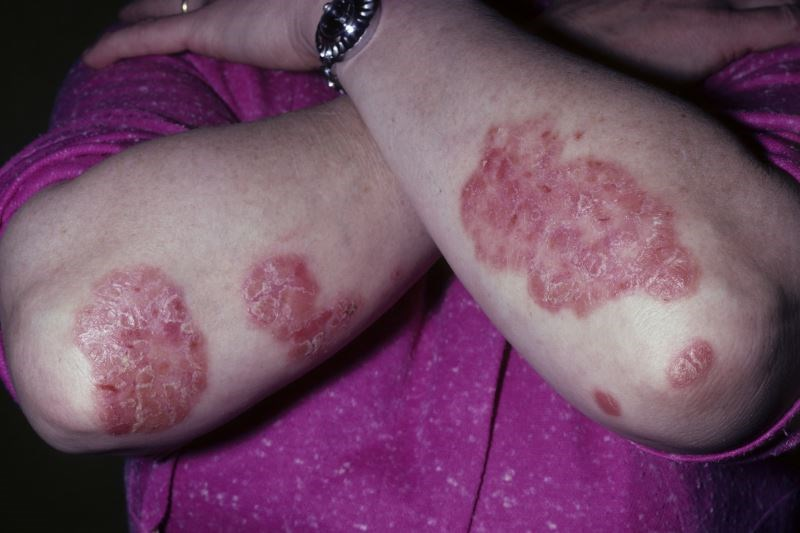 Coal Tar for Psoriasis: Alternative Treatment Update