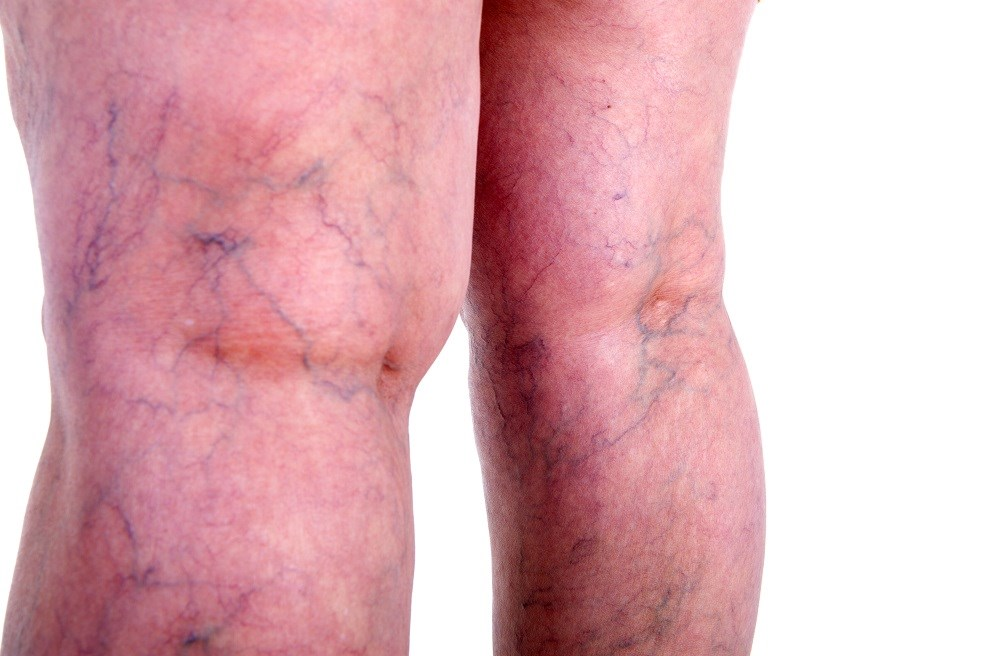 New risk factors have been identified for varicose vein disease, including height.