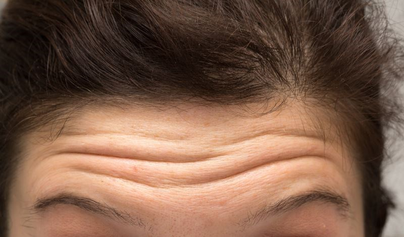 FDA Approves Botox for Forehead Lines