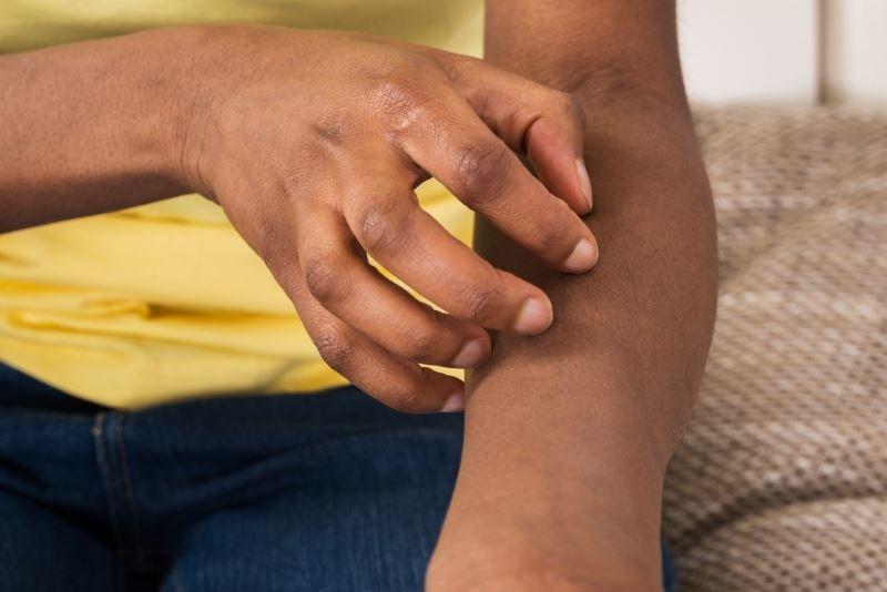 Eczema Health Care Utilization Down in Black Children