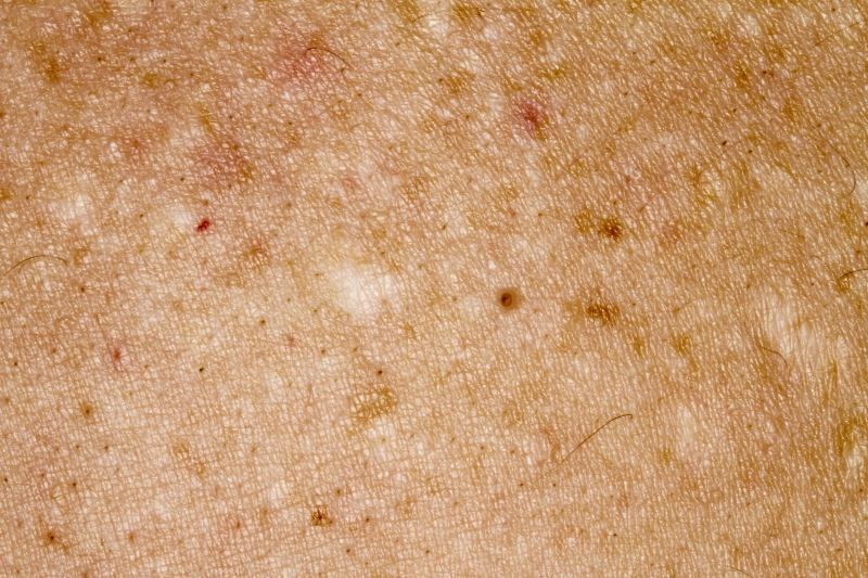 Acne Scarring Improved With Glycolic Acid Peel, Microneedling Combination