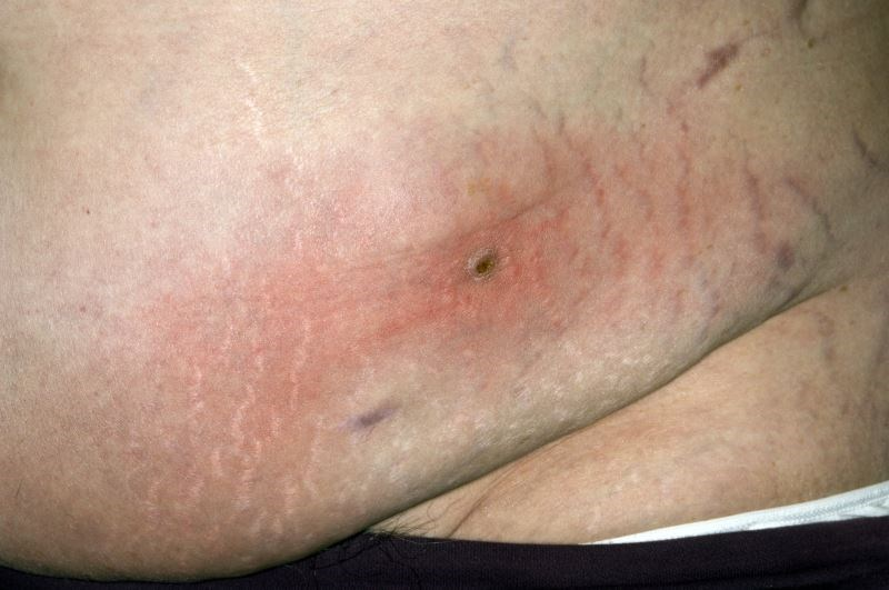 Dalbavancin Safe, Effective for Obese Patients With Acute Bacterial Skin Infections