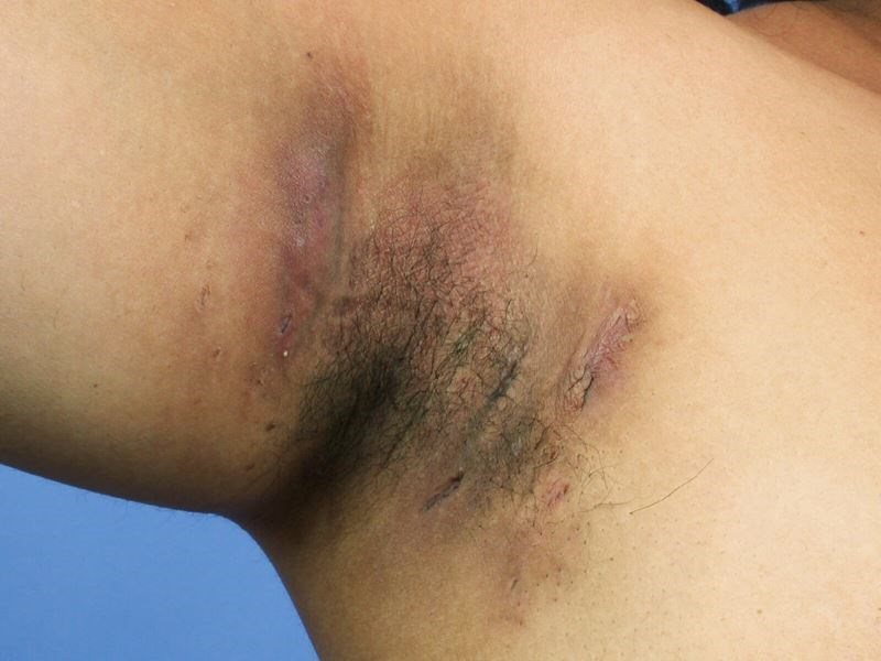 Apremilast Effective, Safe in Hidradenitis Suppurativa