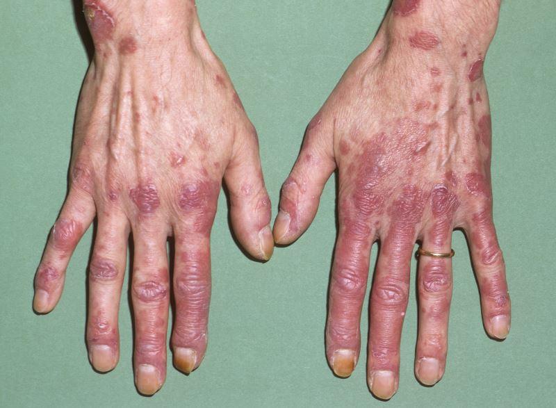 Eular Acr Systemic Lupus Erythematosus Classification