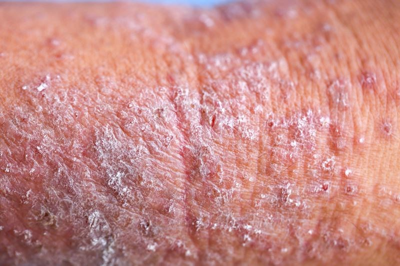 High Patient Burden With Moderate-to-Severe Atopic Dermatitis