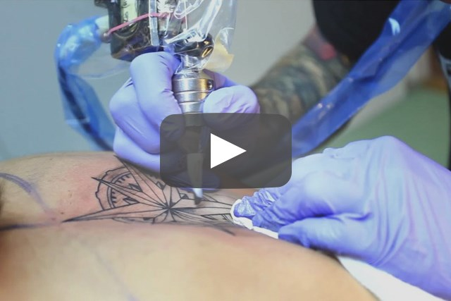 Safe Tattooing Practices for Patients With Chronic Skin Conditions