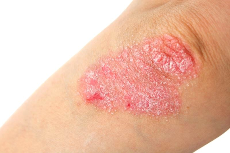 Psoriasis Treatment With Biologic, Systemic Therapies Has No Effect on Herpes Zoster Risk