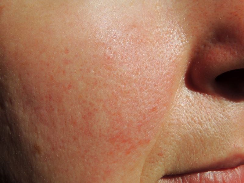 Rosacea Improves With Anti-Inflammatory Effect of Brimonidine Gel