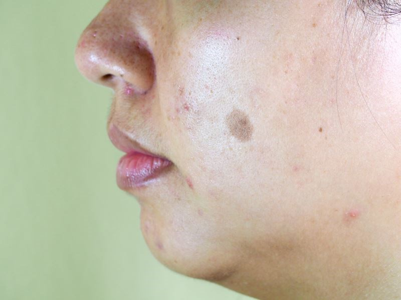 Mixed Melasma Effectively Treated With Laser Alone or With Modified Jessner's Peel