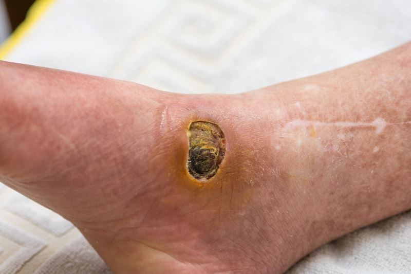Dalbavancin Safe for Acute Bacterial Skin Infection Treatment in Diabetes