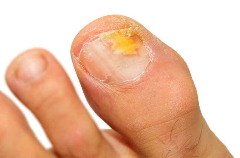 Topical Antifungal Agents Reduce Toenail Onychomycosis Recurrence