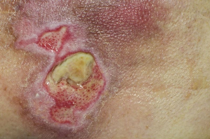 Iclaprim Comparable With Vancomycin for Gram-Positive Acute Bacterial Skin Infections
