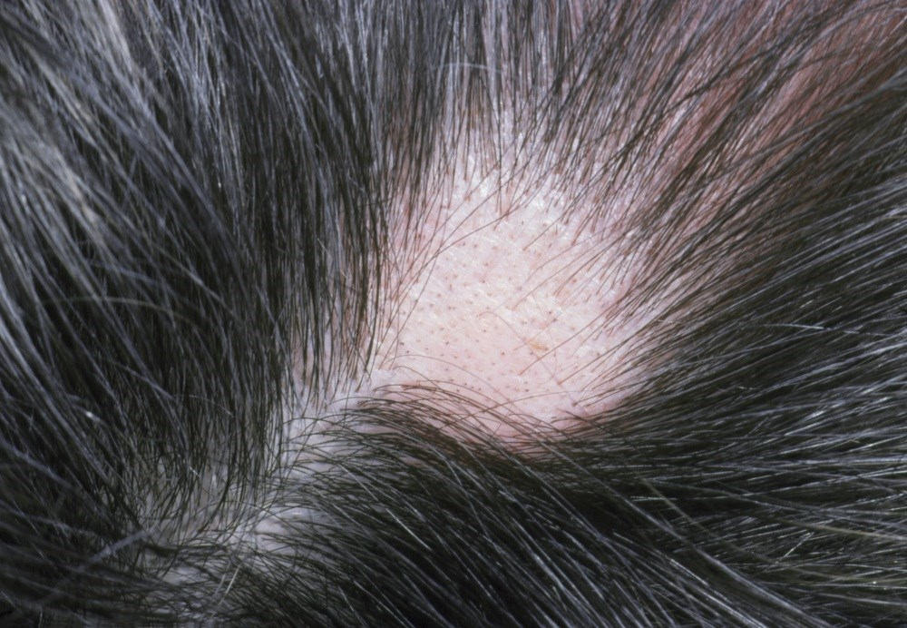 Poliosis may be induced among elderly persons with AA who have a poor melanocyte reservoir status.