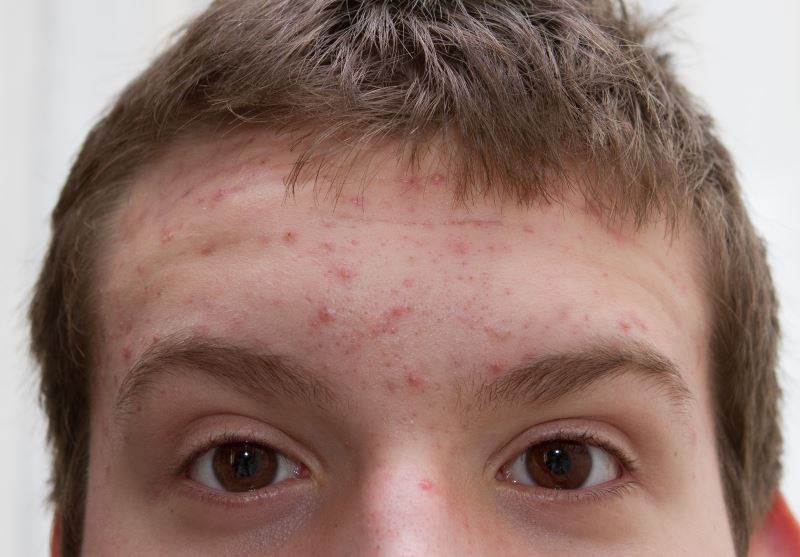 Acne, Sexual Orientation Associated With Mental Health Status
