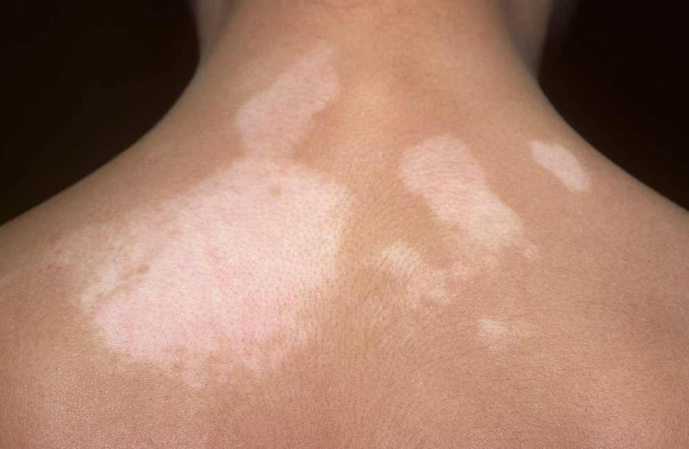 Increased Vitamin D Via Narrow Band UVB Therapy May Improve Vitiligo Symptoms